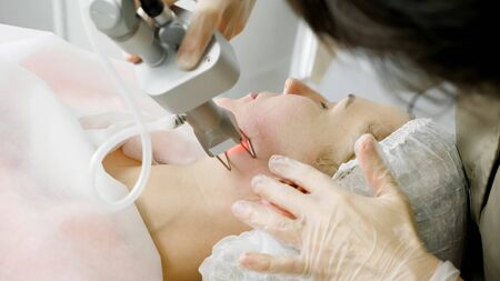 skilled beauty salon therapist in sterile gloves makes laser hair removal procedure on patient face extreme close-up Standard-Bild