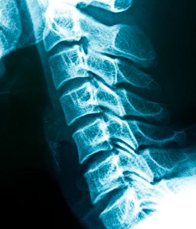 cervicales: Las radiograf�as de la columna cervical Foto de archivo