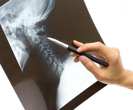 thumb x ray: examining the x-rays of the neck