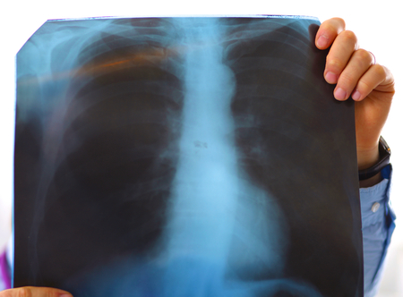roentgen: close up of male doctor holding x-ray or roentgen image.