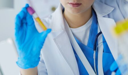 Laboratory assistant woman analyzing a blood sample Stockfoto