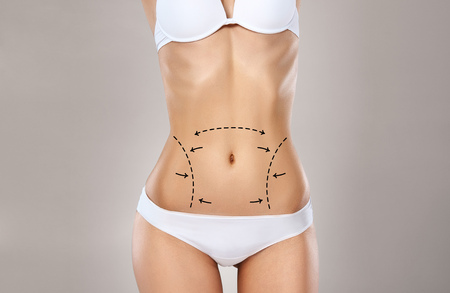 Studio HD capture of a unrecognizable young woman torso in underwear with the drawing arrows and medical marks. Fat lose, liposuction, cellulite removal and skin lifting concept. Stock fotó