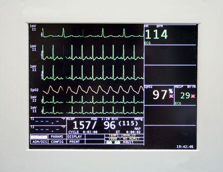 Cardiac monitor displaying patient's ekg tracing Stock Photo - 303953