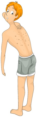 hives: Illustration of a Man Checking His Skin Allergy Stock Photo