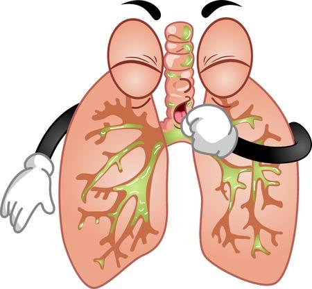 chory: Maskotka Ilustracja Featuring parę Płuc Próbując Kaszel Out Pleghm