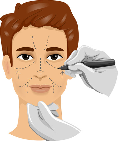 in vain: Illustration of a Man Having His Face Marked With Incision Lines Before  a Cosmetic Procedure