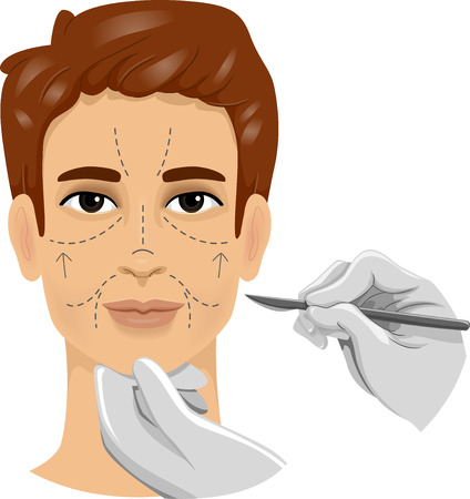 cosmetic surgery: Illustration of a Man With a Scalpel Poised Against the Incision Lines on His Face