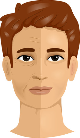 wrinkled face: Illustration of a Man Showing the Difference Between the Two Sides of His Face Before and After Face Lift