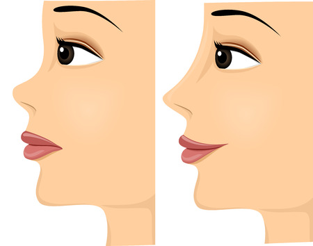 nose job: Side View Illustration of a Woman Showing the Difference in Her Nose Before and After Rhinoplasty