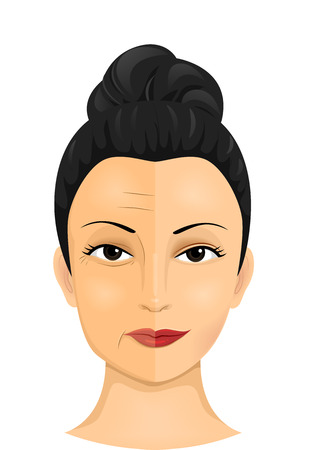 Illustration of a Woman Showing the Difference Between the Two Sides of Her Face Before and After Face Lift