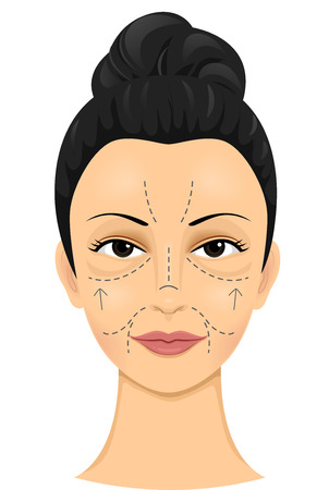 vanity: Illustration of a Woman with Incision Lines Drawn on Her Face