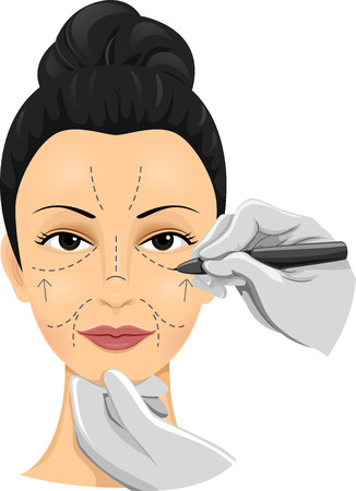cosmetic surgery: Illustration of a Girl Having Incision Lines Drawn on Her Face Stock Photo