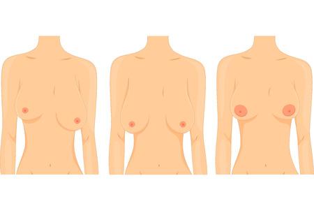 beaux seins: Illustration des femmes représentant les différents types de seins