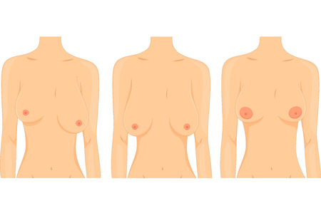 female breast: Illustration of Women Depicting the Different Types of Breasts