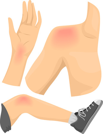 pain: Illustration of Elements Featuring Common Types of Body Pain