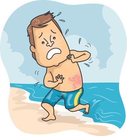 Abbildung eines Mannes am Strand Stung durch eine Qualle