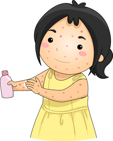 Illustration of a Kid Girl with Chickenpox Applying Unscented Lotion on Her Skin Stock Photo