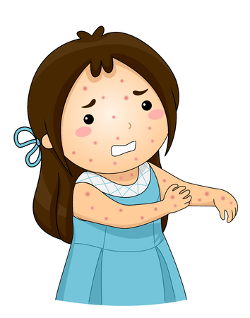 Illustration of a Kid Girl with Chickenpox Scratching her Itchy Skin