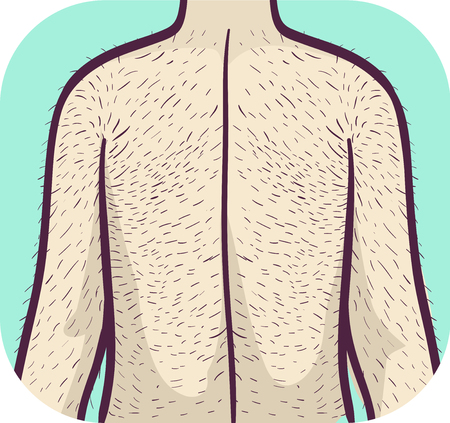 Illustration of a Man with Excessive Hairy Back and Arms. Hypertrichosis Health Problem