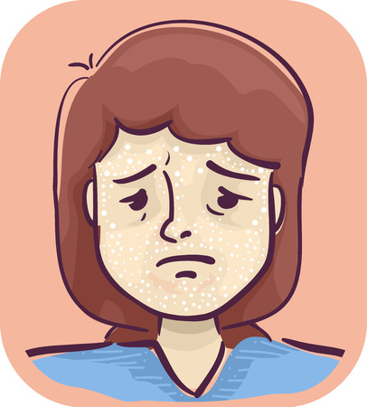 Illustration of a Sad Girl with Scabs on Her Face