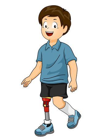 Kid Boy Walking with a Prosthetic Leg 스톡 콘텐츠