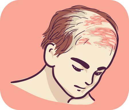 Illustration of a Man with Blisters on His Scalp Stok Fotoğraf