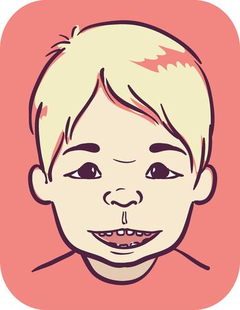 Illustration of a Kid Boy with Angelman Syndrome 版權商用圖片