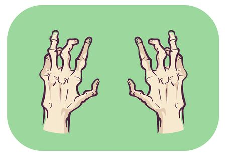 Illustration of Hands with Joint Deformity Affecting Both Hands