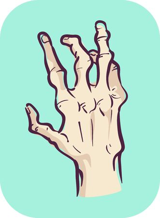 Illustration of a Hand Showing Joint Deformity