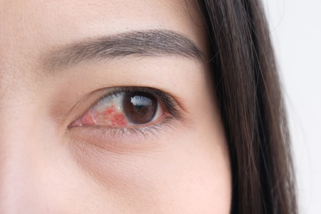 red eye. conjunctivitis or irritation of sensitive eyes. 免版税图像