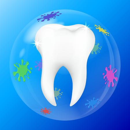 innen: Zahninnenschutzschild - Illustration.