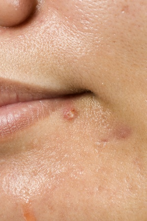 Acne on woman, great for your health niche design photo