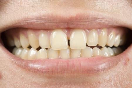 spacing: Spacing teeth oral problem, photo for teeth problem