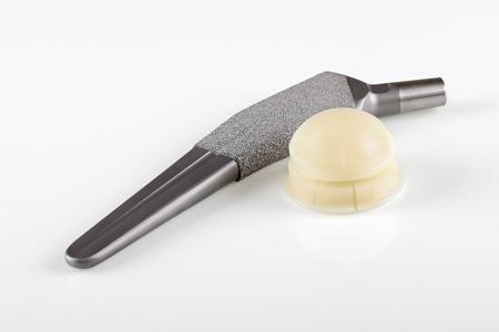 hip fracture: Aleaci�n de titanio de reemplazo de cadera