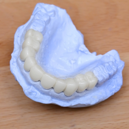 dental model photo