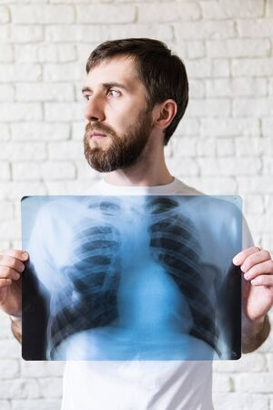 Young bearded man holding X-ray film of lungs and heart in front of his chest, white background. Vertical orientation