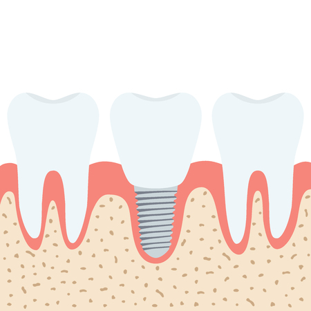 Medical denture. Human teeth, dentist implant in cartoon flat vector style. Çizim