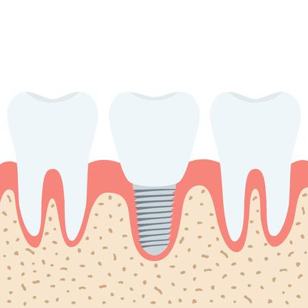 Medische kunstgebit. Menselijke tanden, tandarts implantaat in cartoon vlak vector stijl.
