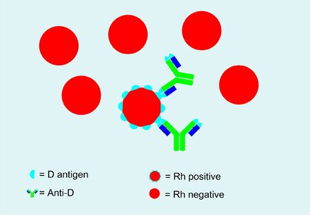Anti-D binding with D antigen and not binding on rh negative blood, Rh blood system