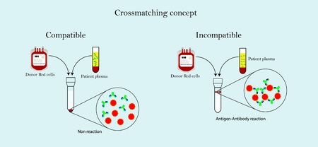 Crossmatching between donor red cell and patient plasma before blood transfusion in blood bank laboratory