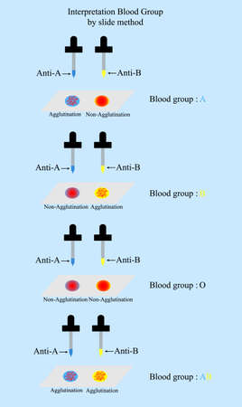Interpretation blood group in ABO System by slide method in laboratory