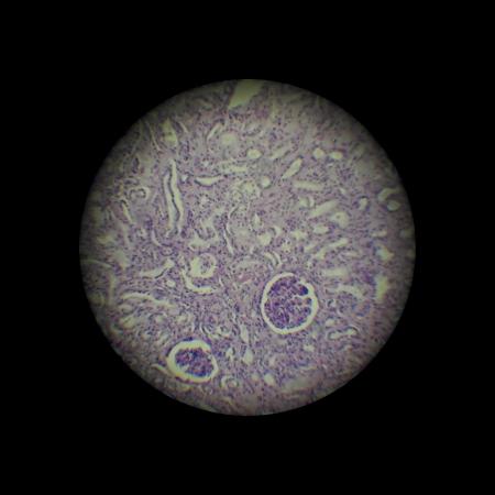 nephritis: image through the microscope.  zoom x 40