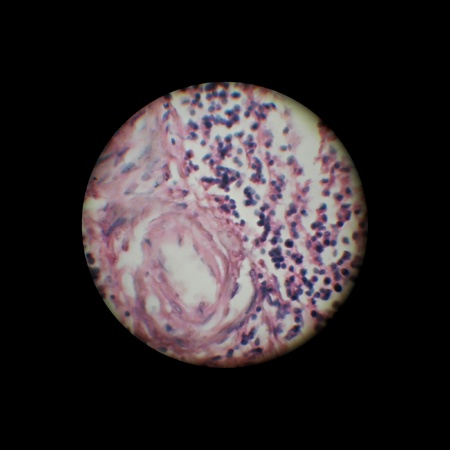 lien: image through the microscope.  zoom x 40
