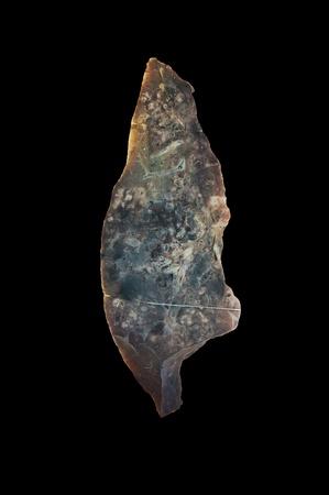 image of hematogenic tuberculosis isolated on black photo