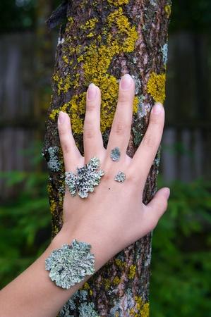 liquen en la mano de la mujer joven que simboliza una enfermedad de la piel