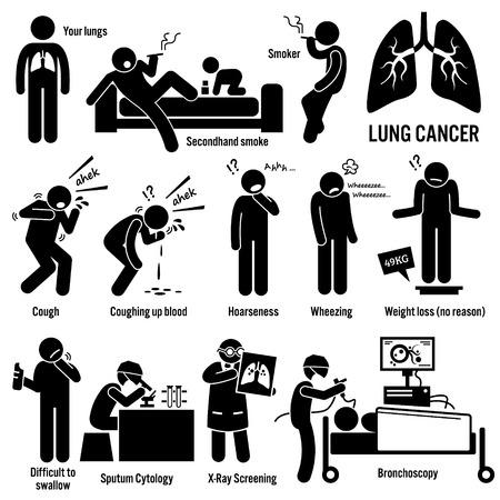 Los síntomas del cáncer de pulmón Causas Factores de riesgo Diagnóstico Figura Stick pictograma Iconos Ilustración de vector