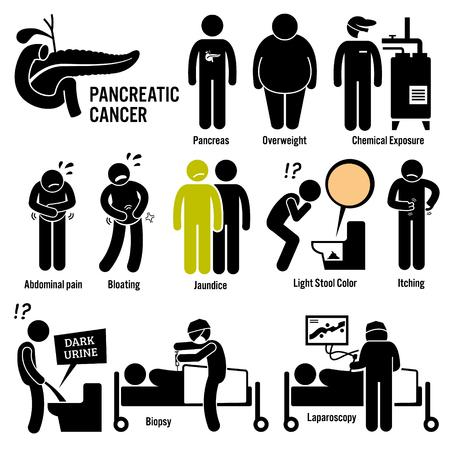 Bauchspeicheldrüsenbauchspeicheldrüsenkrebs Symptome Ursachen Risikofaktoren Diagnose Strichmännchen-Piktogramm Icons Illustration