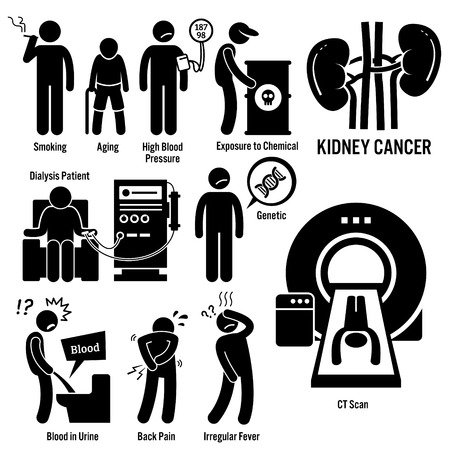 Les symptômes du cancer du rein Causes Facteurs de risque Diagnostic Stick Figure pictogrammes Icons Banque d'images - 50654342