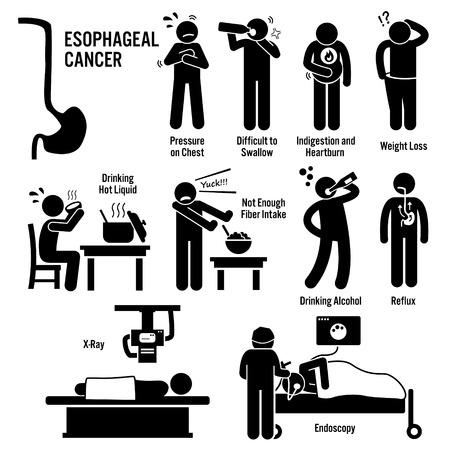 strichmännchen: Ösophagus Speiseröhre Kehlkopfkrebs Symptome Ursachen Risikofaktoren Diagnose Strichmännchen-Piktogramm Icons Illustration