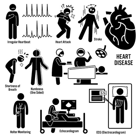 heart attacks: Cardiovascular Disease Heart Attack Coronary Artery Illness Symptoms Causes Risk Factors Diagnosis Stick Figure Pictogram Icons Illustration